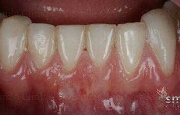 after painless receeding gum surgery