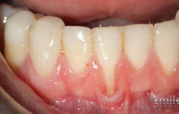 before painless receeding gum surgery