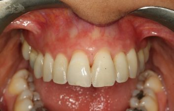 gum_recession_treatment_london_after