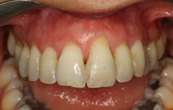 gum_recession_treatment_london_before