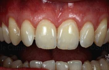London dentist receeding gums treatment after