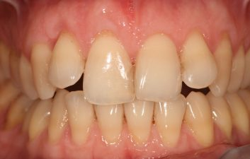 Pinhole Gum Recession Treatment After