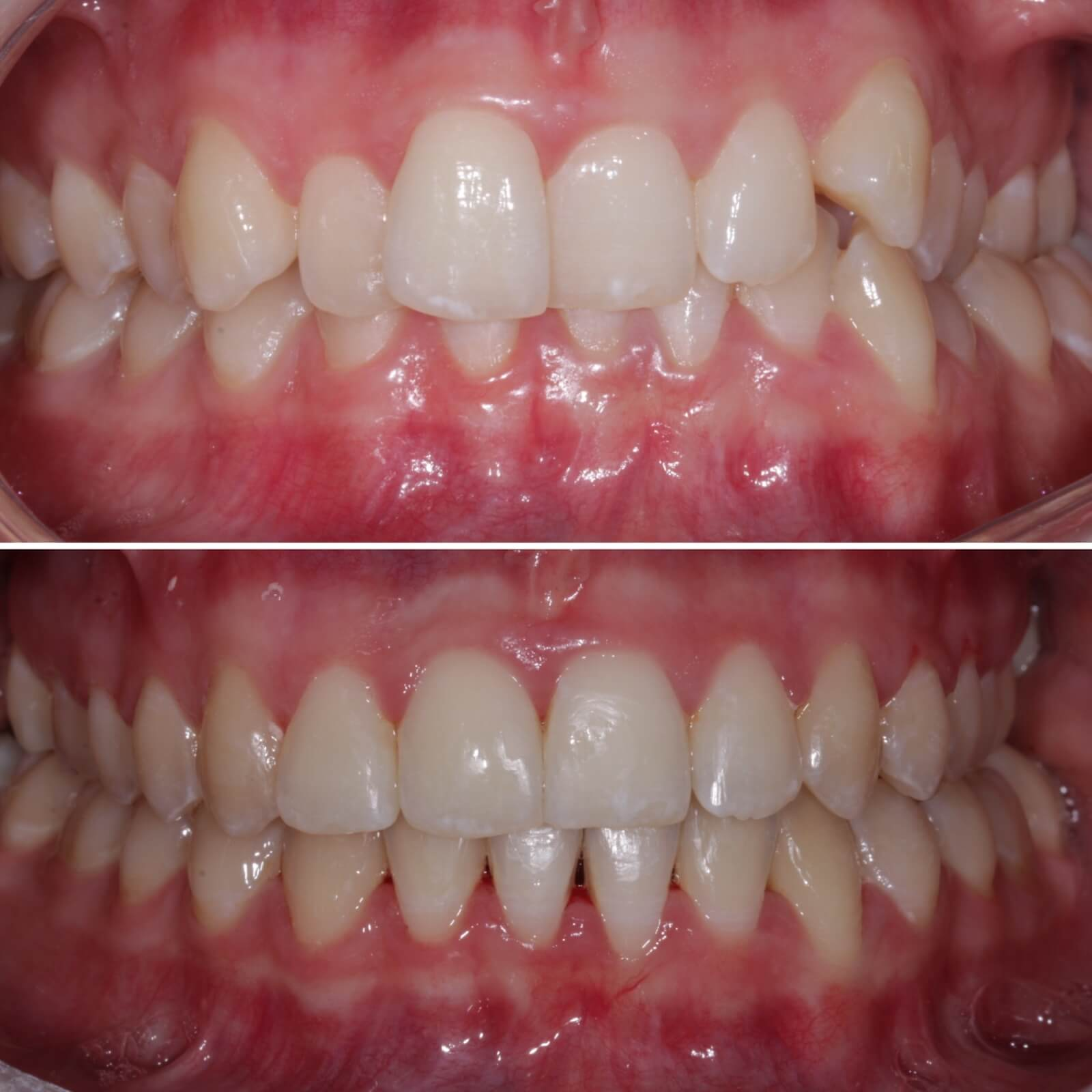 Fast braces - before and after