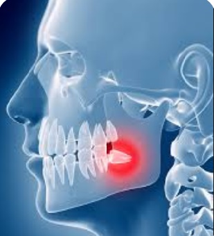 Wisdom tooth dental pain at the back of the mouth