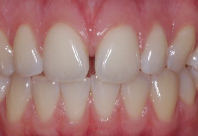 Before - Diastema/Space Closure