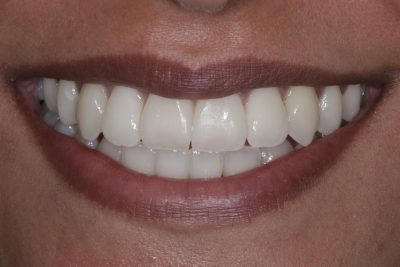 cosmetic_dentist_london_before