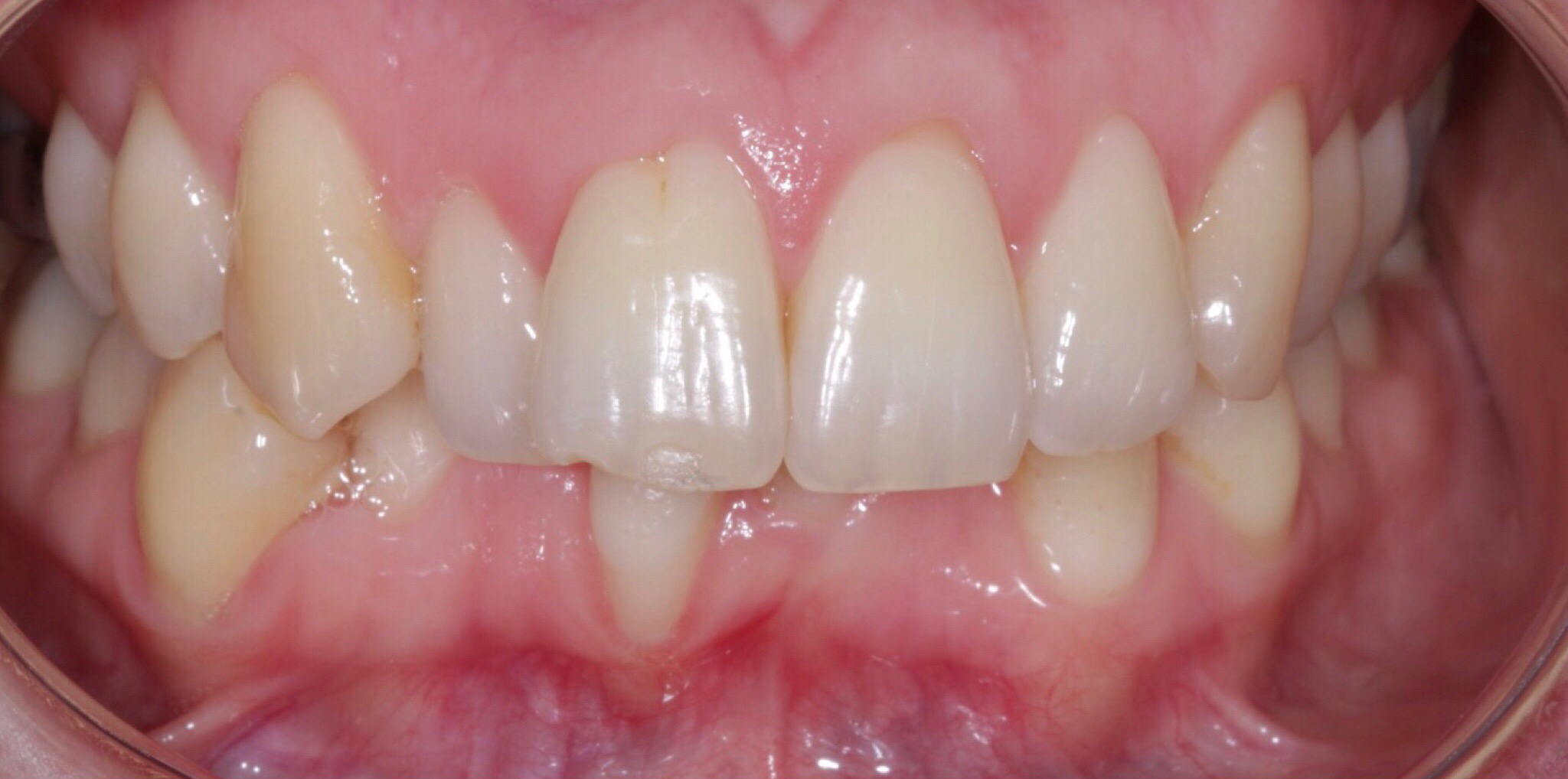 Fastbraces® Clear - Before
