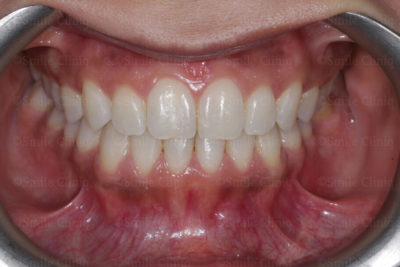 Fastbraces to correct crossbite and a canterd smile after