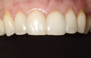 Bioclear_black_triangle_treatment_london_after