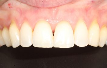 Bioclear_black_triangle_treatment_london_before