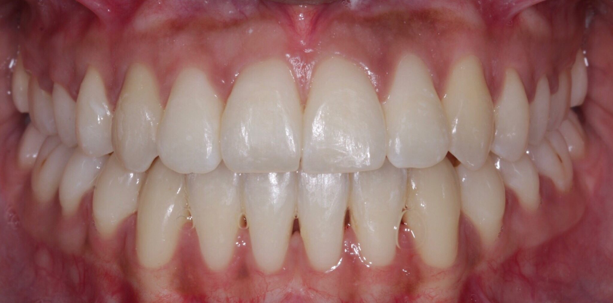 After - Openbite and crossbite correction