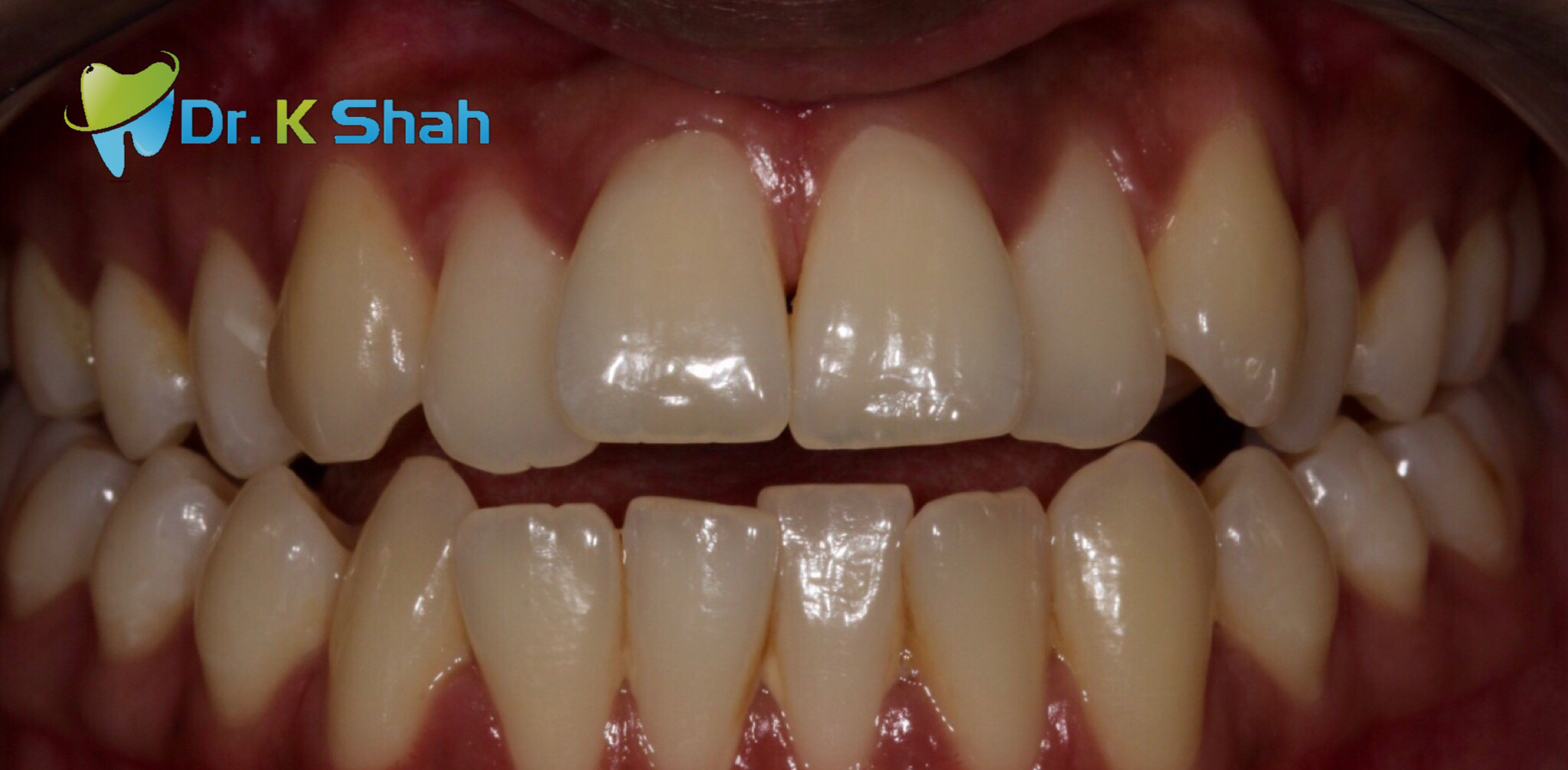 Before - Openbite and crossbite correction