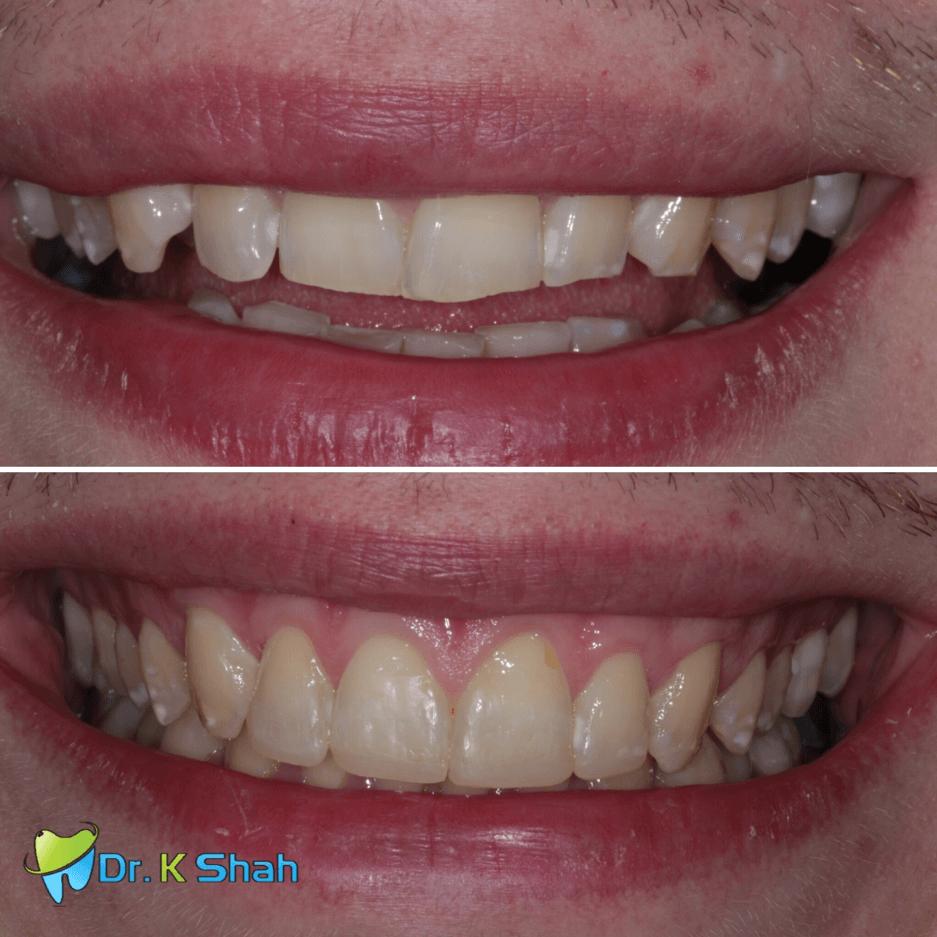 Retroclined upper teeth and cosmetic bonding