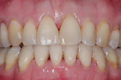 After - Rotated teeth aligned
