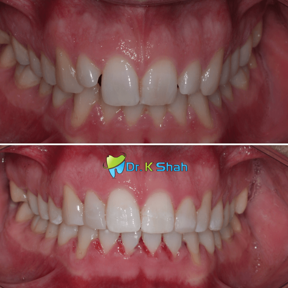 V Shaped arch and peg shaped lateral correction with Fastbraces ® clear and bonding