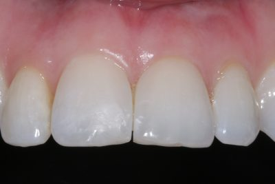 bioclear after