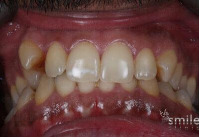 fastbraces london dentist before