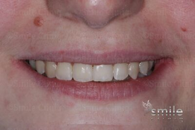 Finchley dentist braces after