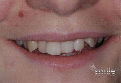 Finchley dentist braces before