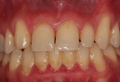 Pre bioclear and whitening