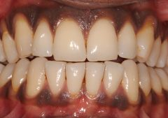 Gingival Depigmentation