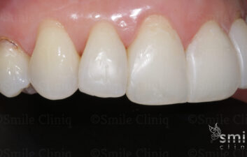 after black triangle treatment london dentist