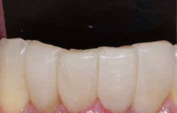 Black triangles london dentist after