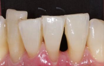Black triangles london dentist before