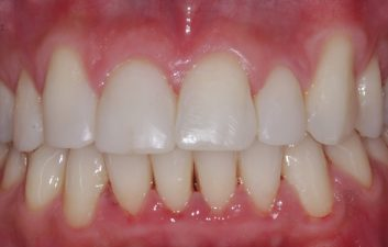 Enlighten Whitening Dentist London