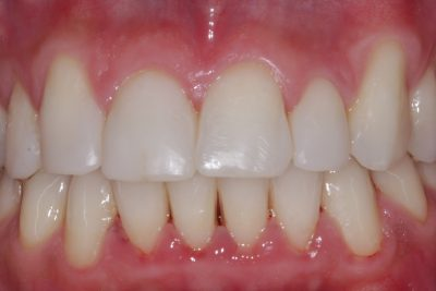 Post bioclear and whitening