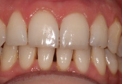 Before Bioclear cosmetic bonding