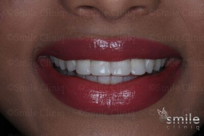 after whitening and bonding st johns wood dentist