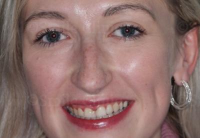 London dentist composite bonding before