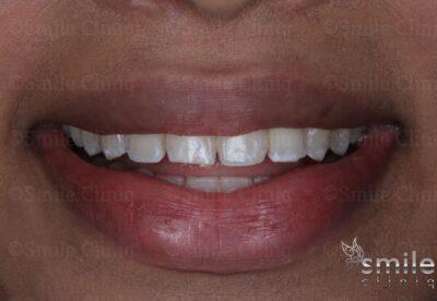 before bonding and whitening st johns wood dentist