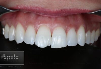 before london dentist composite bonding