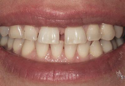 Before diastema closure