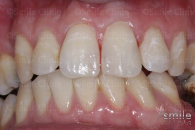 composite bonding front teeth after london
