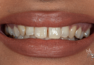 front tooth gap closure bonding before