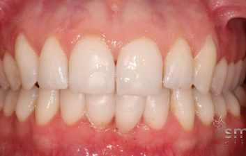 After Bioclear cosmetic bonding