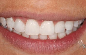 London dentist after whitening and bonding
