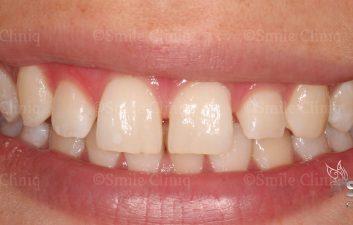 London dentist before whitening and bonding