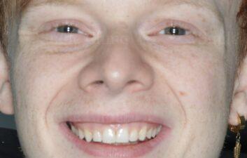 London dentist after composite bonding