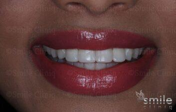 after whitening and bonding st john's wood dentist