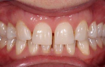 Composite Bonding London Dentist