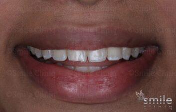 before whitening and bonding st john's wood dentist