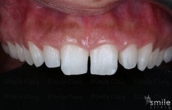 composite bonding london dentist before