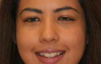 finchley dentist composite bonding before