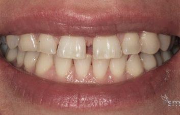 diastema closure before