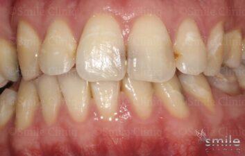 front teeth composite bonding london before