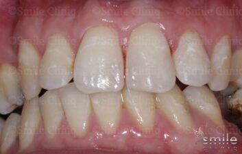front teeth composite bonding london after